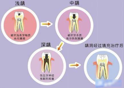 什么是龋齿?蛀牙和龋齿有什么区别