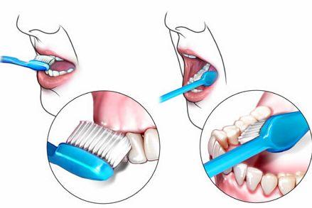 正确的刷牙方法,如何正确刷牙?